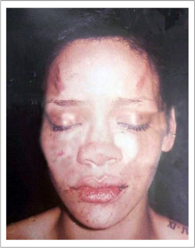 Rihanna get beaten up by Chris Brown